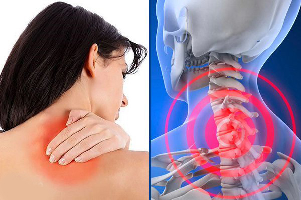 Các bệnh lý xương khớp là nguyên nhân chủ yếu gây ra các cơn đau vai gáy
