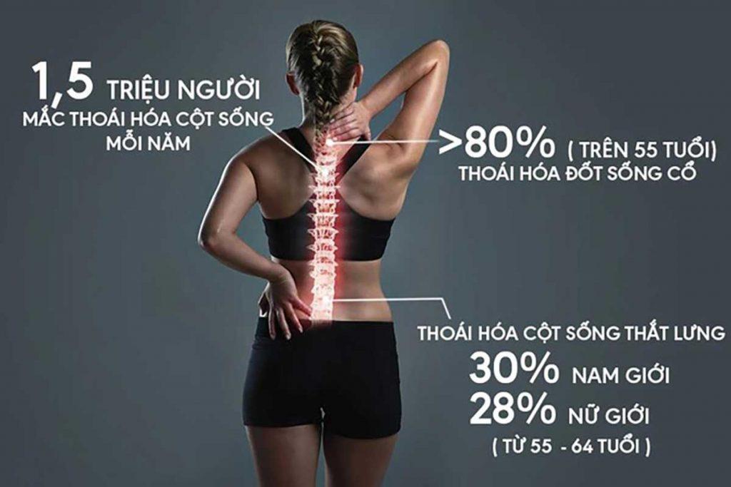 điều trị thoái hóa cột sống thắt lưng tphcm