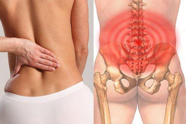 chữa đau thắt lưng