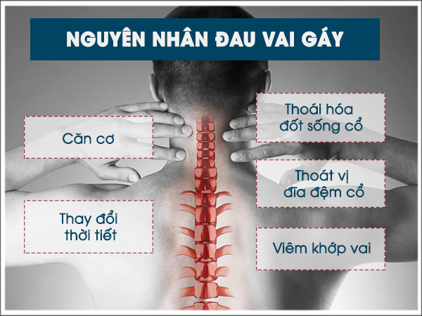 điều trị đau vai gáy tphcm