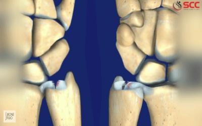 đau nhức tay chân